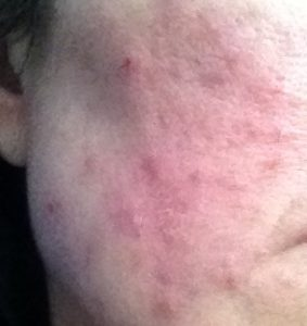 Adult acne or Rosacea?